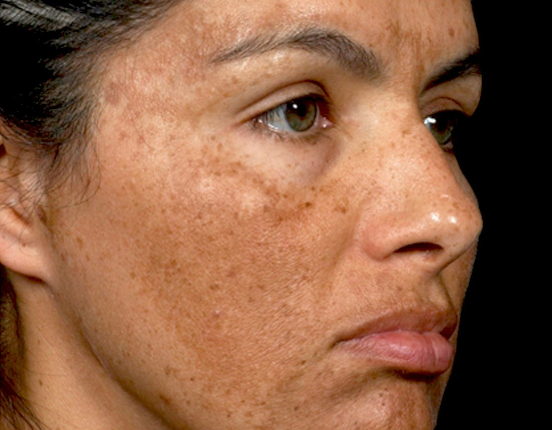 Your Guide to Melasma: How To Treat Tricky Dark Spots - The
